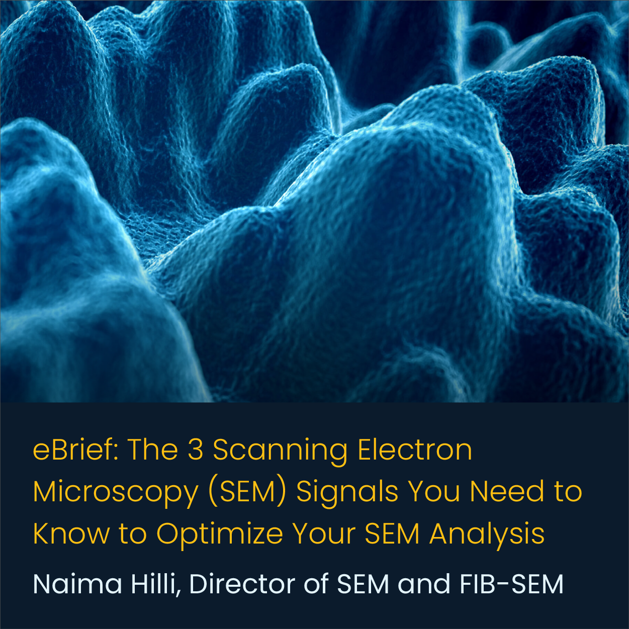 3 Scanning Electron Microscopy (SEM) Signals You Need to Know to Optimize Your SEM Analysis